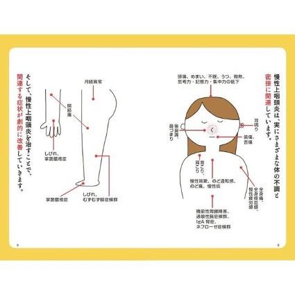 上咽頭擦過療法の対象