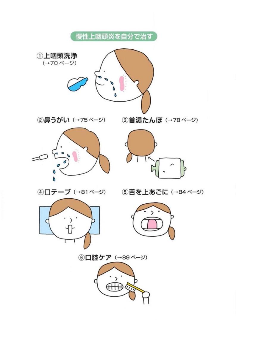 慢性上咽頭炎の治療